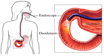 dr-coolen-gastroscopy